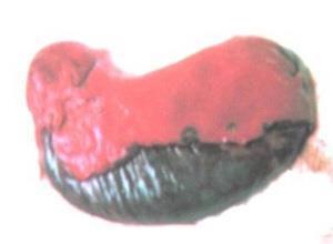 急性梗阻性化脓性胆管炎