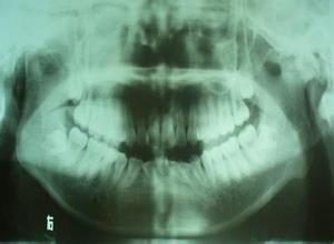 小颌畸形综合征