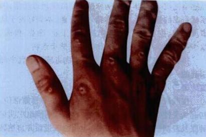 薄荷粥清热解毒降低感染几率